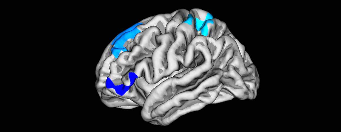 map-of-correlations-between-cortical-thickness-and-cognitive-scores
